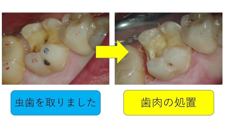 マイクロスコープ虫歯治療