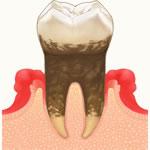 歯周病治療(歯周病認定医)